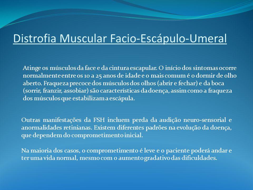 Distrofia Muscular Facio-Escápulo-Umeral