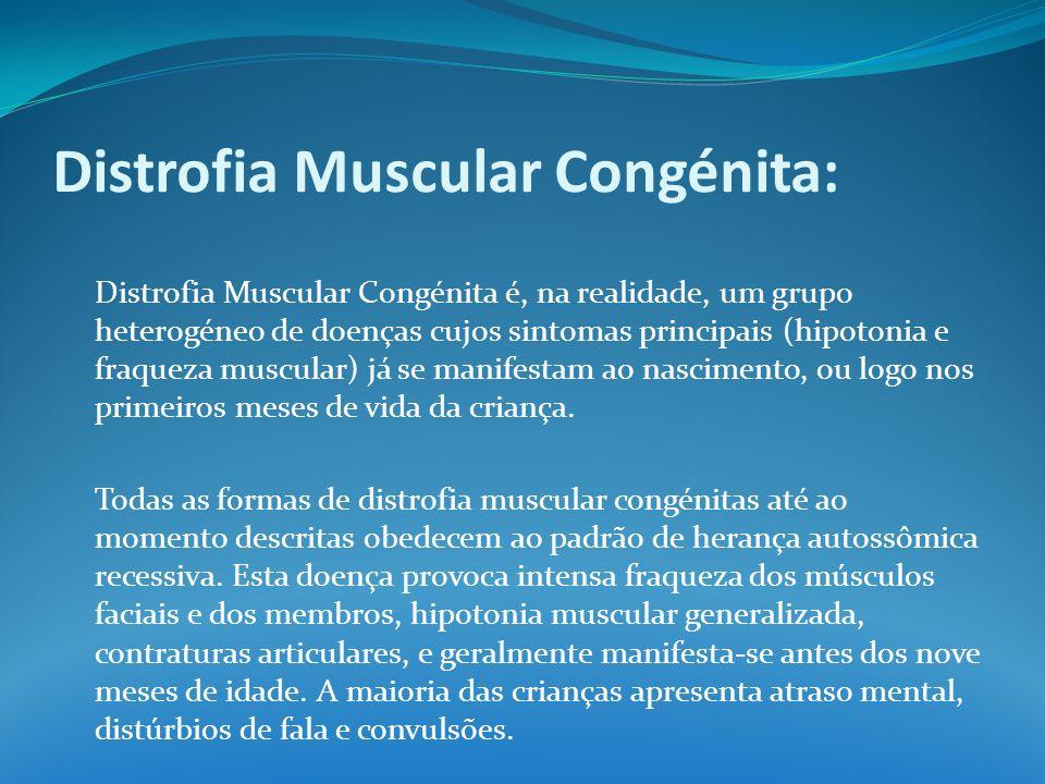 Distrofia Muscular Congénita: