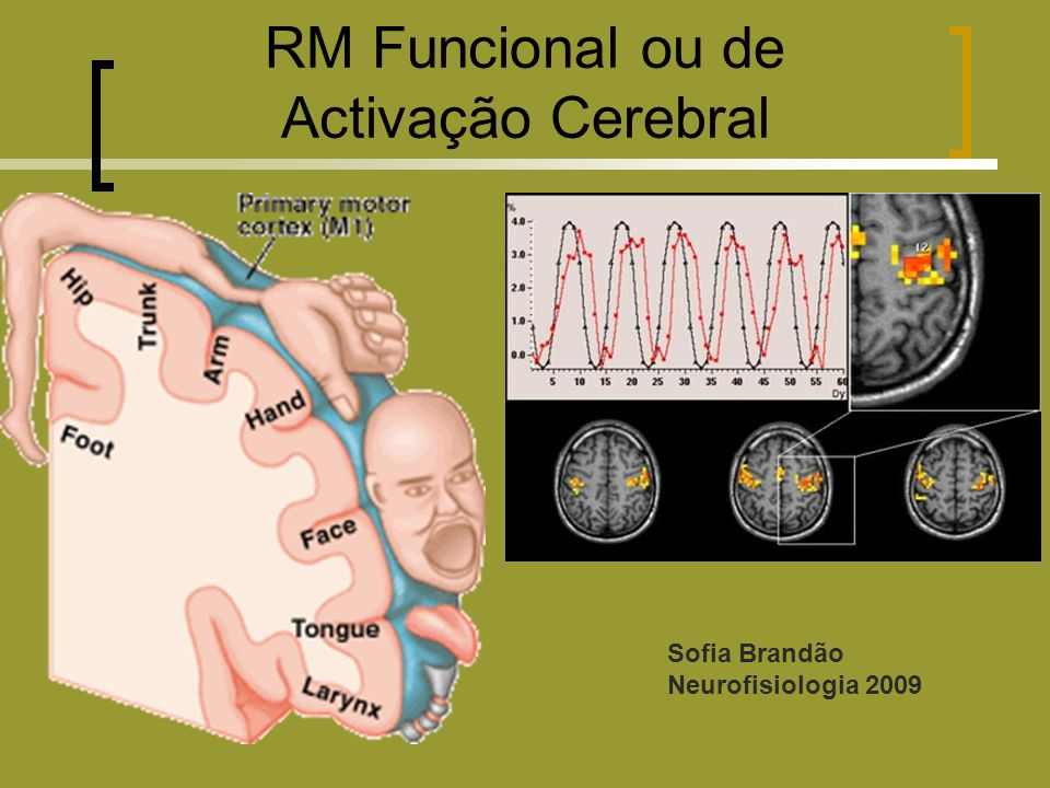 RM Funcional ou de Activação Cerebral Sofia Brandão
