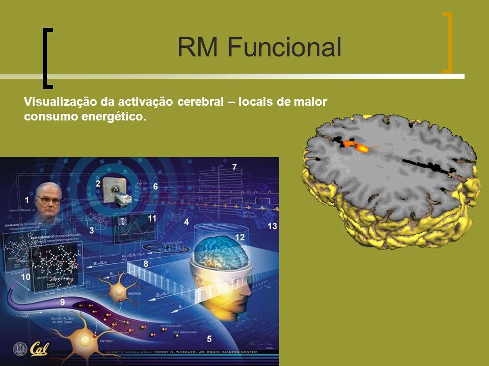 RM Funcional Visualização da activação cerebral – locais de maior consumo energético.