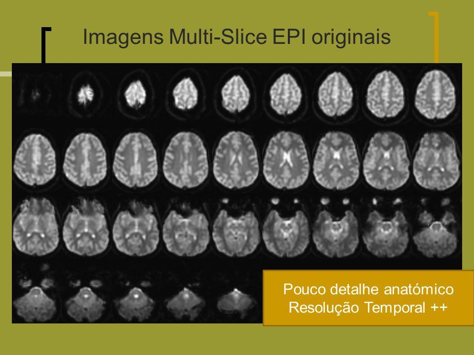 Imagens Multi-Slice EPI originais