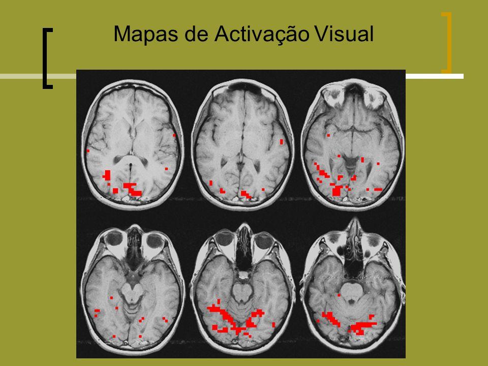 Mapas de Activação Visual