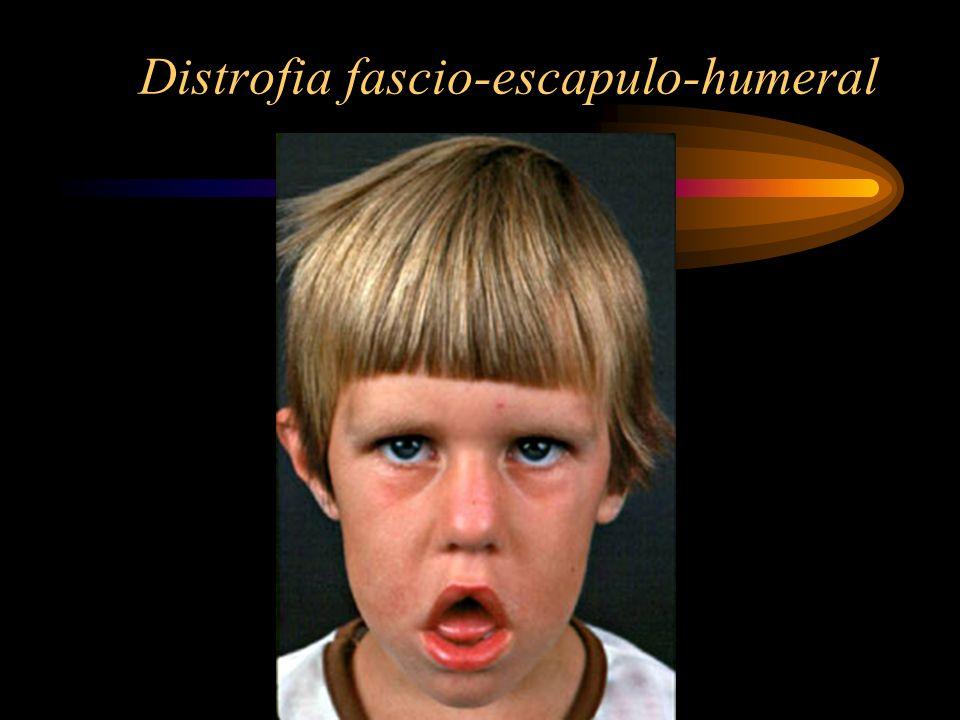 Distrofia fascio-escapulo-humeral