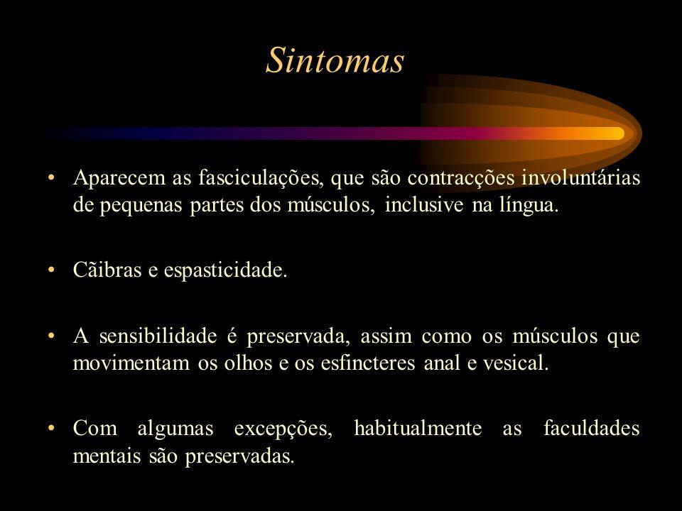 SintomasAparecem as fasciculações, que são contracções involuntárias de pequenas partes dos músculos, inclusive na língua.