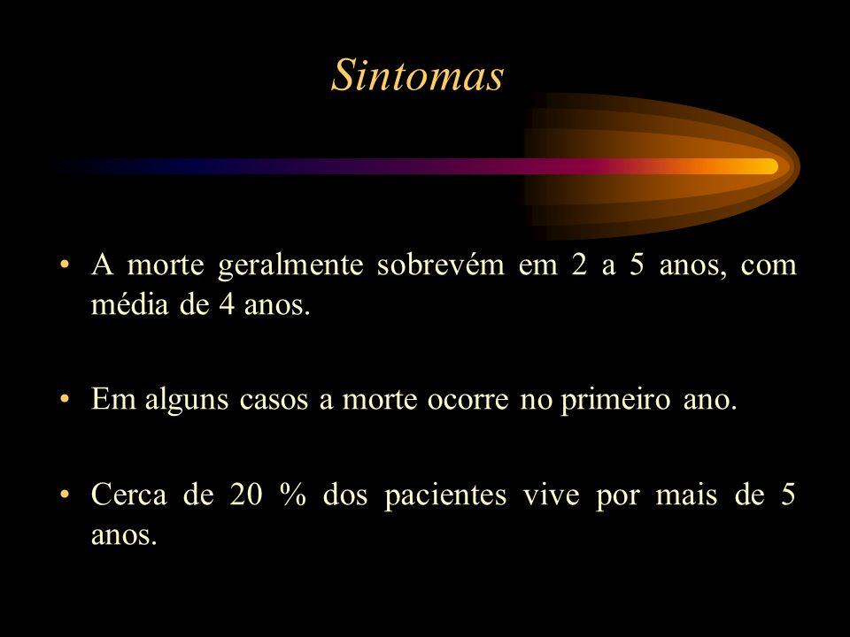 SintomasA morte geralmente sobrevém em 2 a 5 anos, com média de 4 anos. Em alguns casos a morte ocorre no primeiro ano.