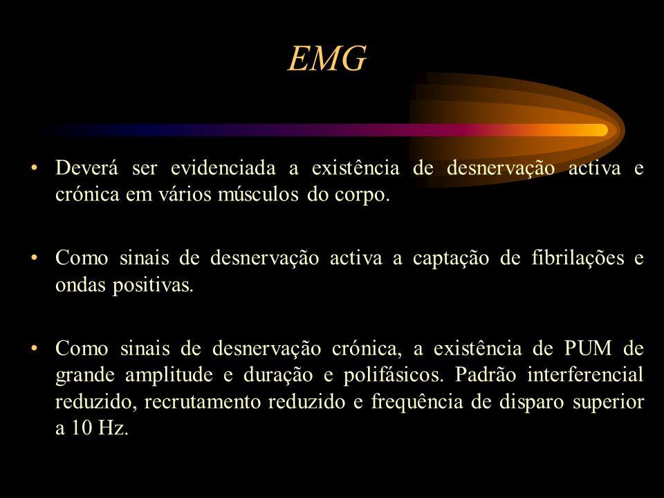EMGDeverá ser evidenciada a existência de desnervação activa e crónica em vários músculos do corpo.