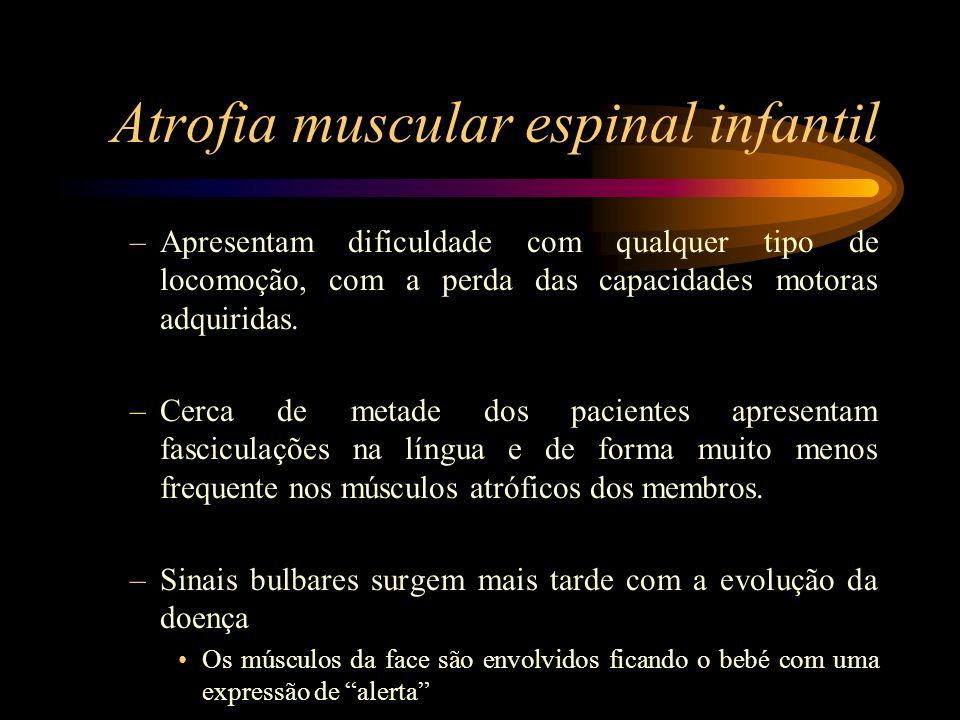 Atrofia muscular espinal infantil