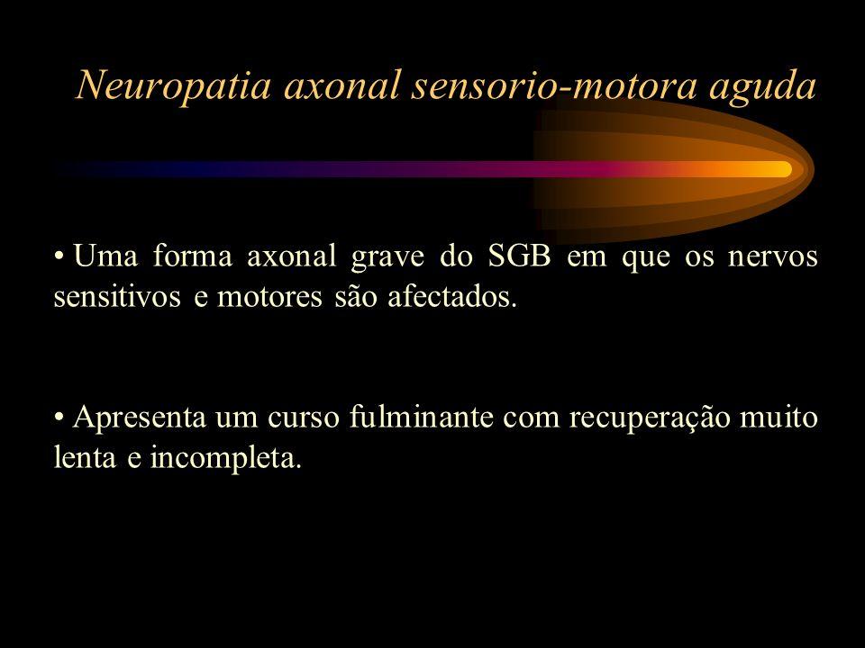 Neuropatia axonal sensorio-motora aguda