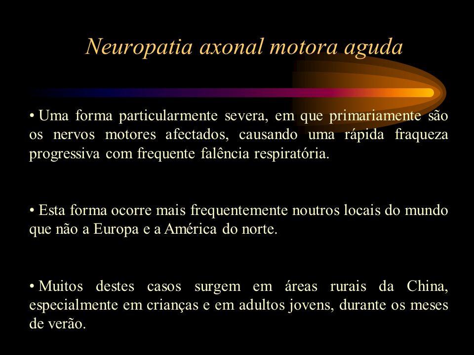 Neuropatia axonal motora aguda