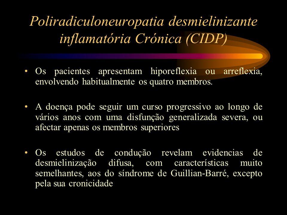 Poliradiculoneuropatia desmielinizante inflamatória Crónica (CIDP)