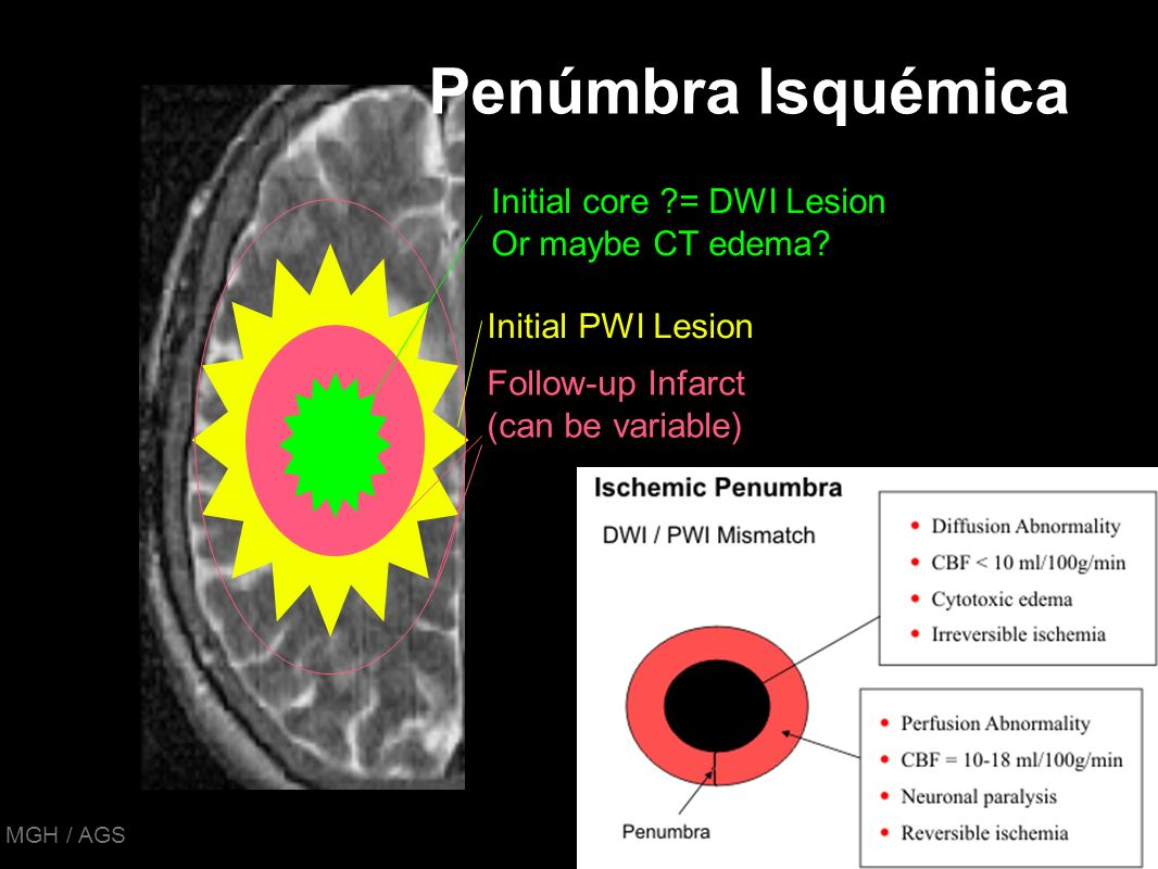 Penúmbra Isquémica Initial core = DWI Lesion Or maybe CT edema