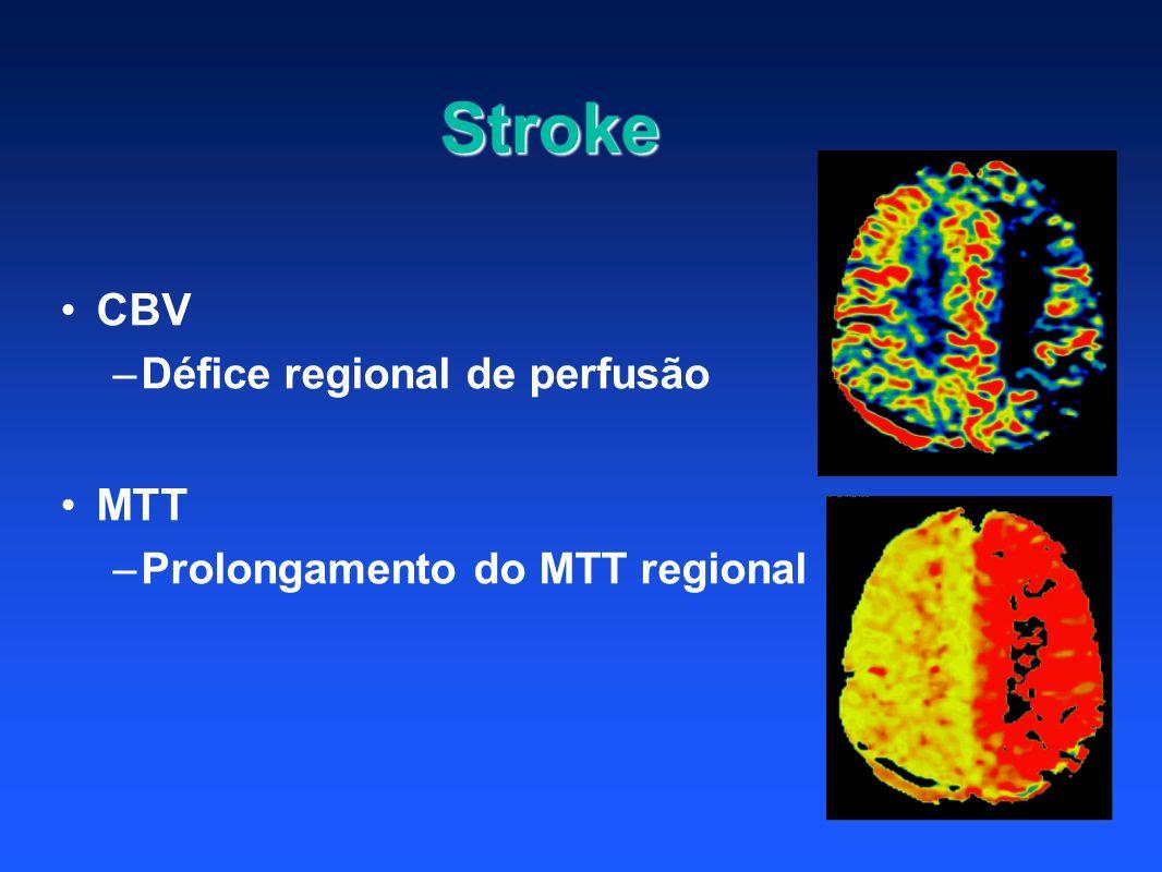 Stroke CBV MTT Défice regional de perfusão