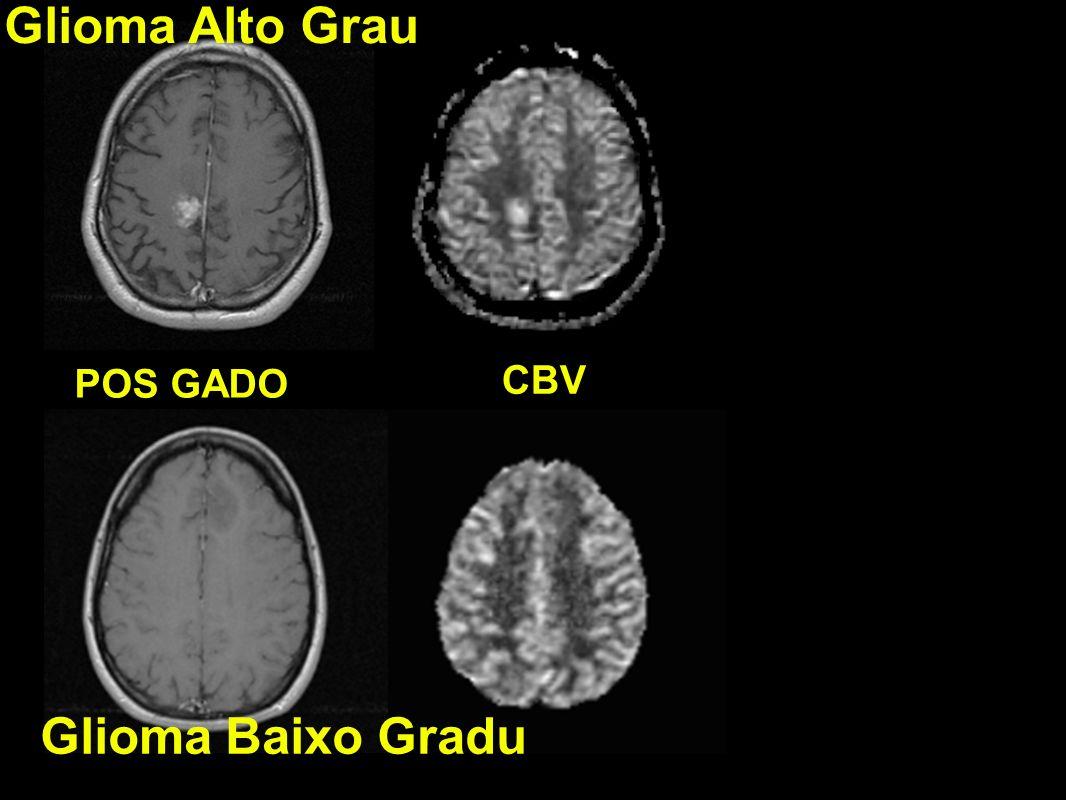 Glioma Alto Grau POS GADO CBV Glioma Baixo Gradu