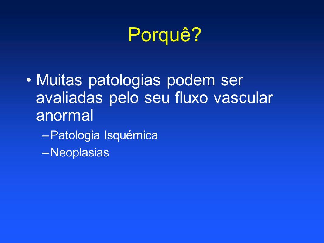 Porquê Muitas patologias podem ser avaliadas pelo seu fluxo vascular anormal. Patologia Isquémica.