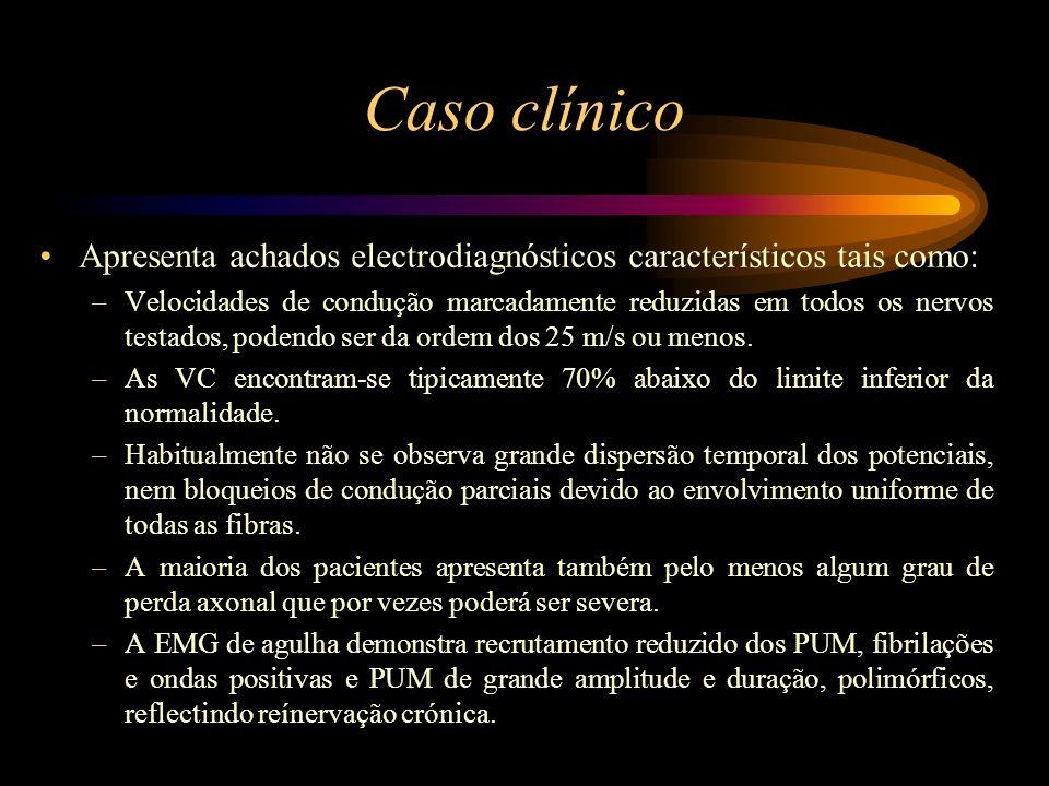 Caso clínico Apresenta achados electrodiagnósticos característicos tais como:
