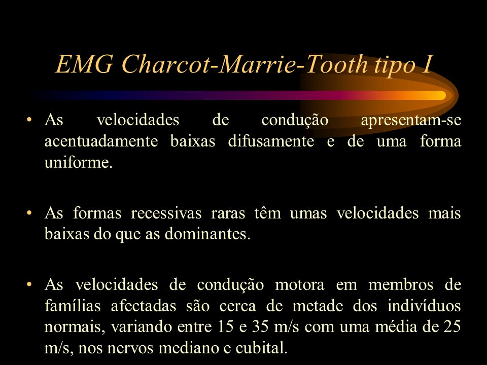 EMG Charcot-Marrie-Tooth tipo I