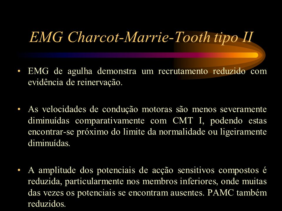 EMG Charcot-Marrie-Tooth tipo II