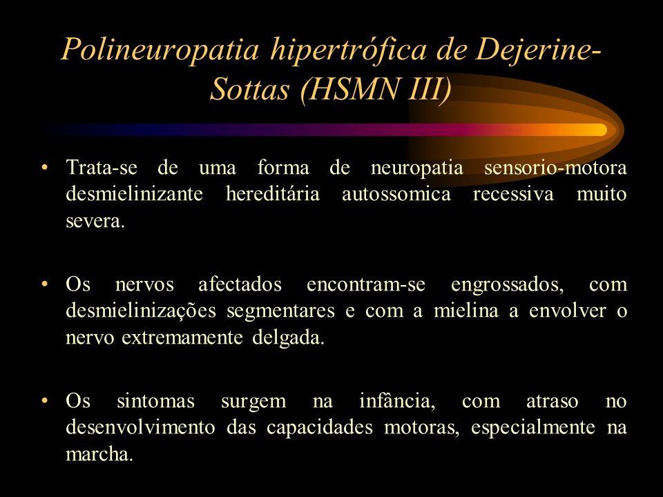 Polineuropatia hipertrófica de Dejerine-Sottas (HSMN III)