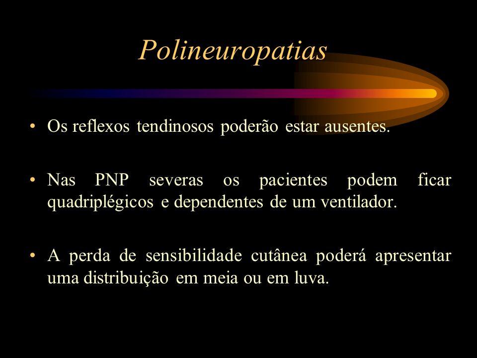 Polineuropatias Os reflexos tendinosos poderão estar ausentes.