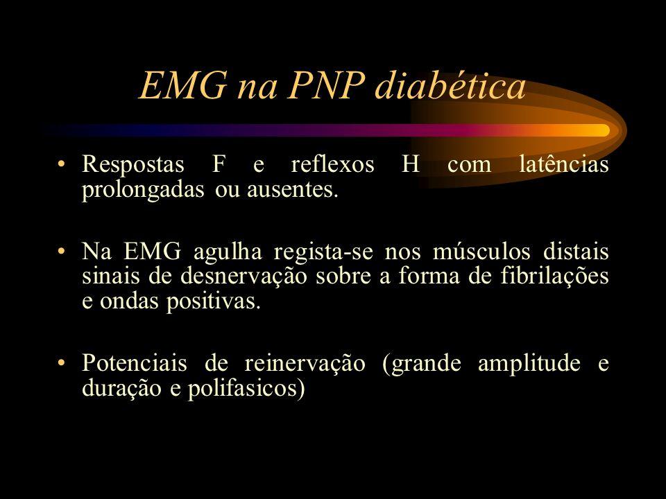 EMG na PNP diabética Respostas F e reflexos H com latências prolongadas ou ausentes.