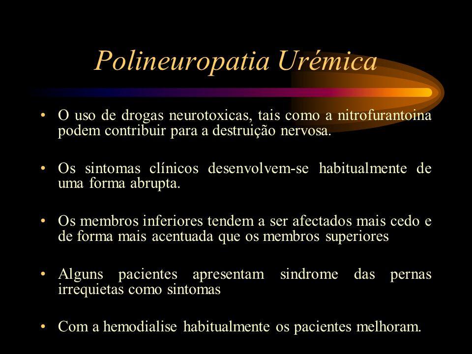 Polineuropatia Urémica
