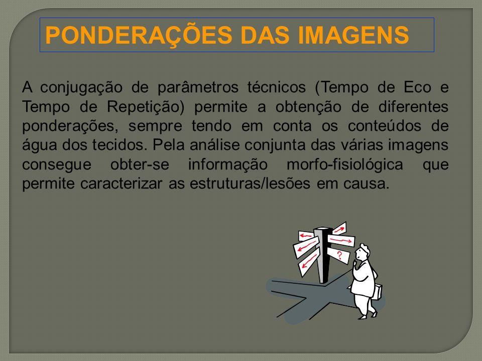 PONDERAÇÕES DAS IMAGENS