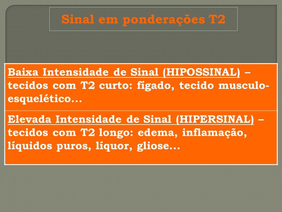 Sinal em ponderações T2 Baixa Intensidade de Sinal (HIPOSSINAL) – tecidos com T2 curto: fígado, tecido musculo-esquelético...