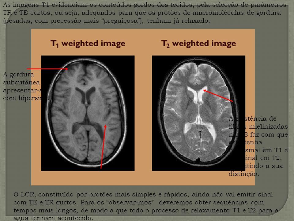 As imagens T1 evidenciam os conteúdos gordos dos tecidos, pela selecção de parâmetros TR e TE curtos, ou seja, adequados para que os protões de macromoléculas de gordura (pesadas, com precessão mais preguiçosa ), tenham já relaxado.