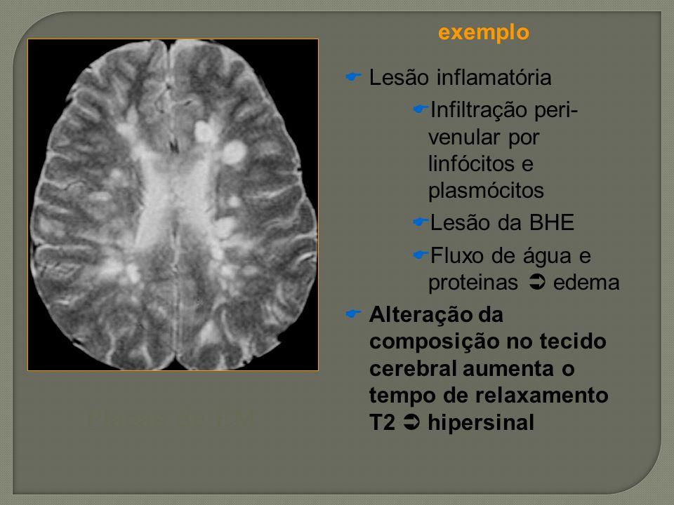 Placas de EM exemplo Lesão inflamatória