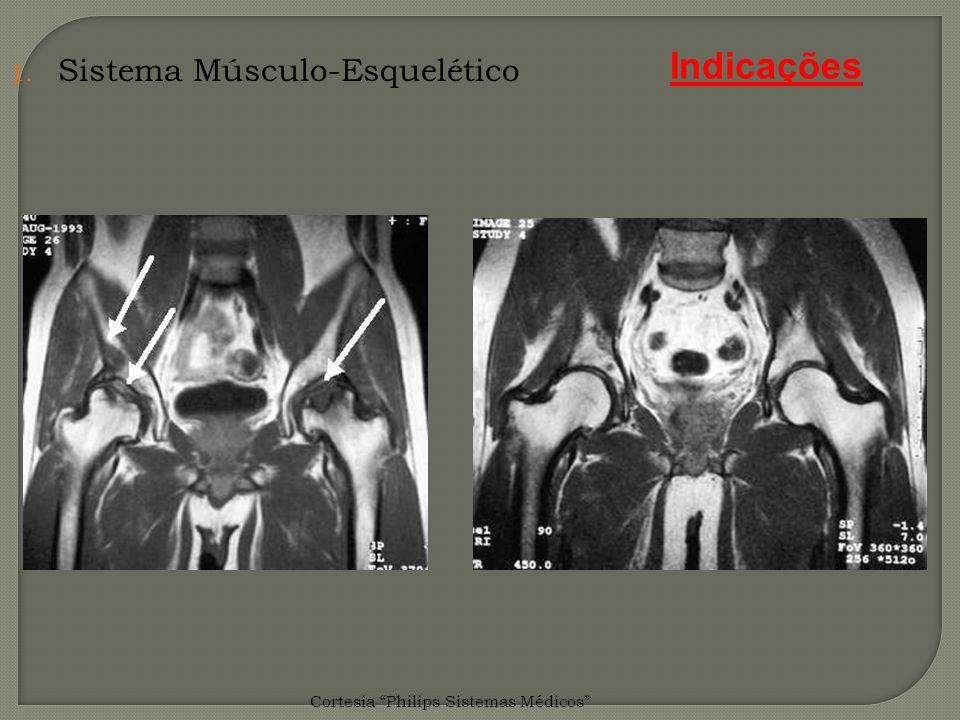 Indicações Sistema Músculo-Esquelético
