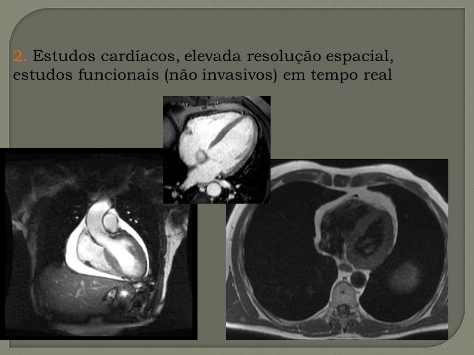 2. Estudos cardíacos, elevada resolução espacial,
