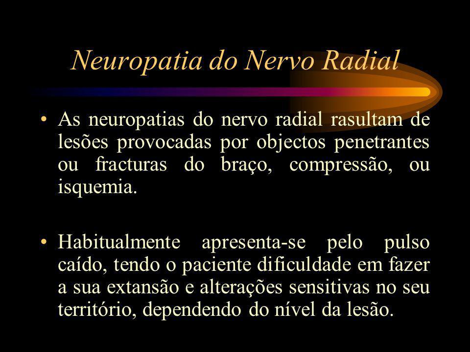 Neuropatia do Nervo Radial