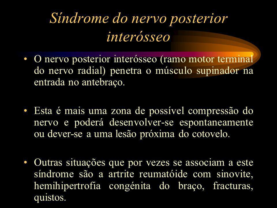 Síndrome do nervo posterior interósseo