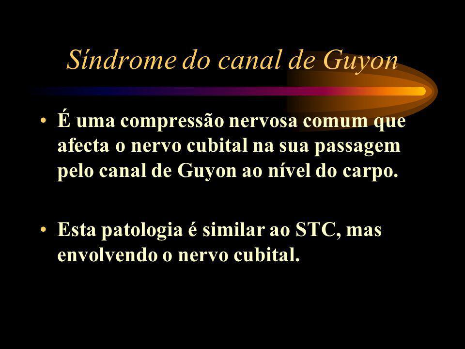 Síndrome do canal de Guyon