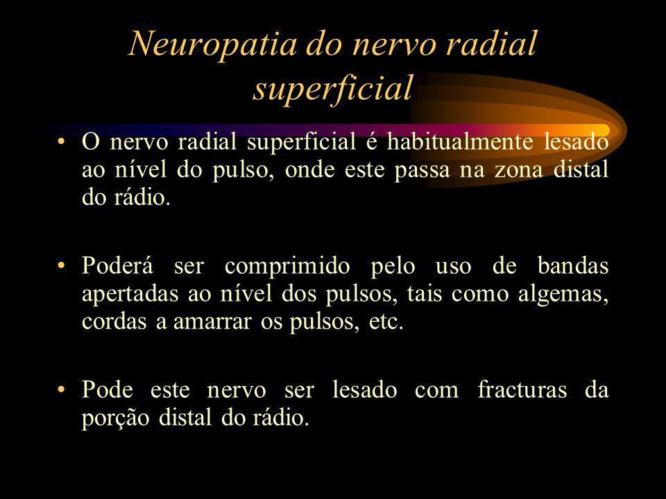 Neuropatia do nervo radial superficial