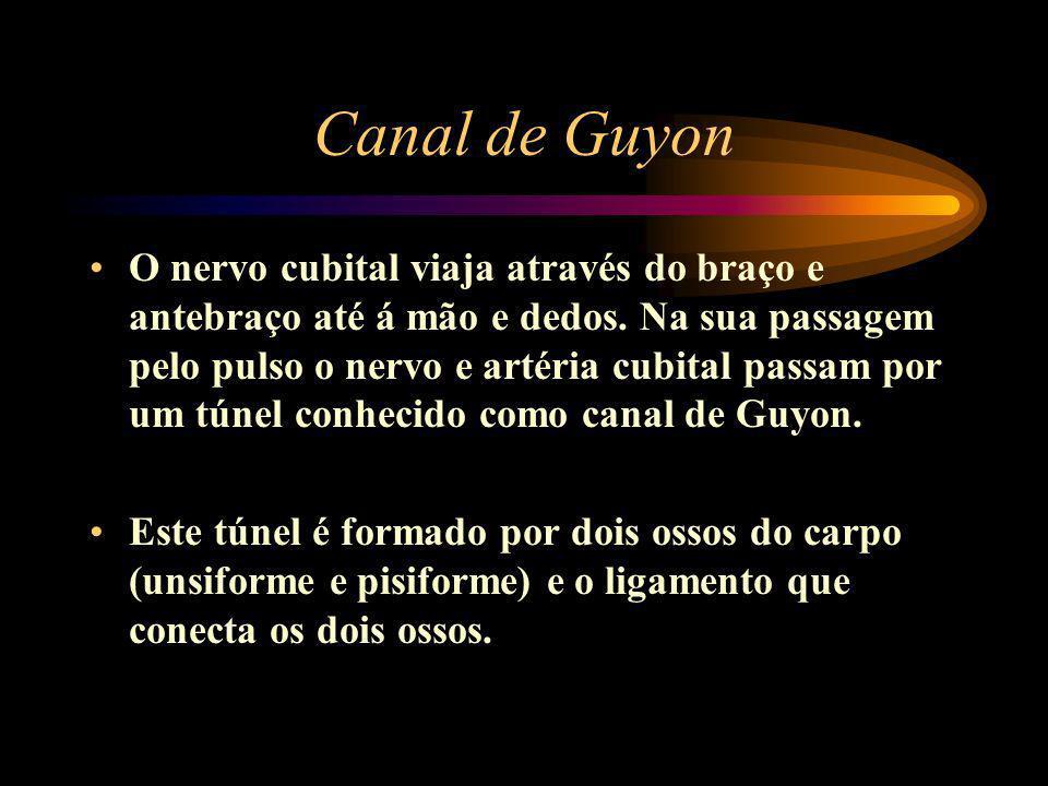 Canal de Guyon