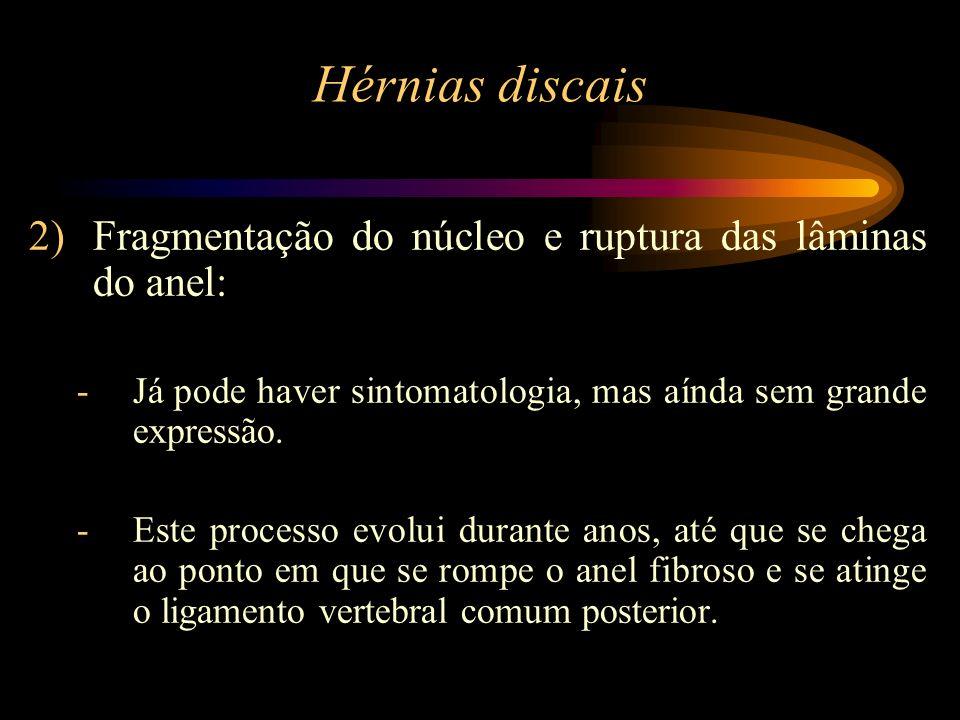 Hérnias discais Fragmentação do núcleo e ruptura das lâminas do anel:
