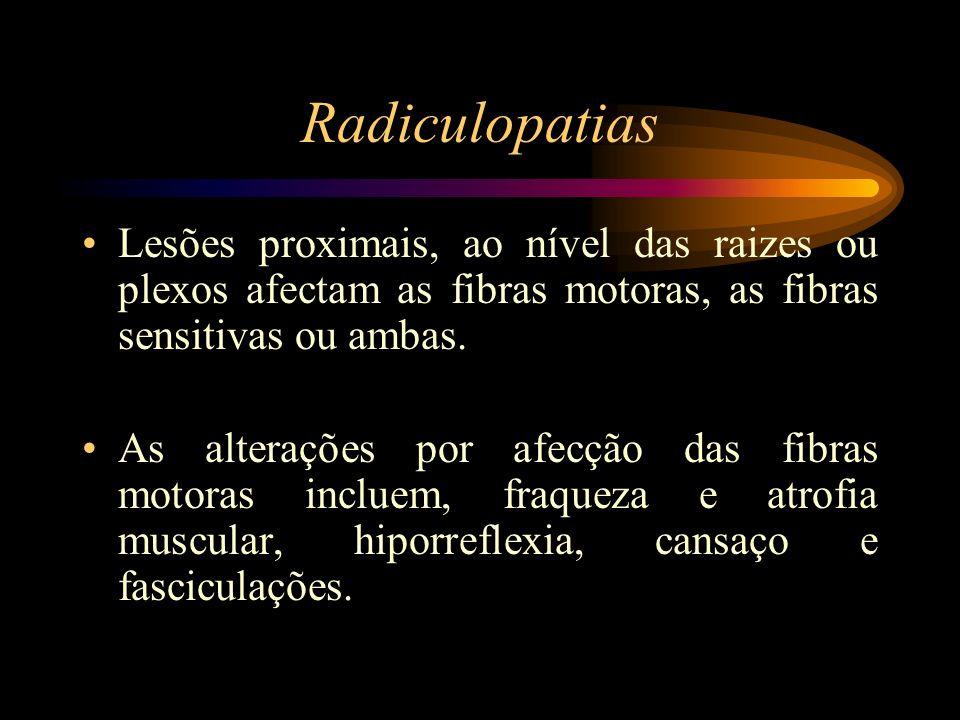 Radiculopatias Lesões proximais, ao nível das raizes ou plexos afectam as fibras motoras, as fibras sensitivas ou ambas.