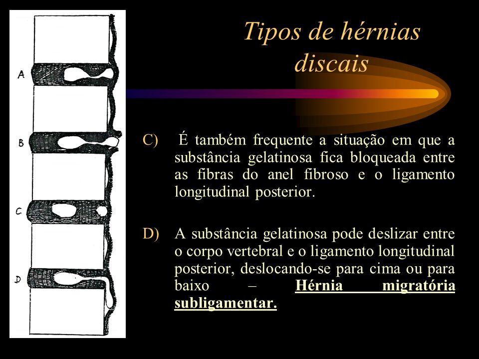 Tipos de hérnias discais