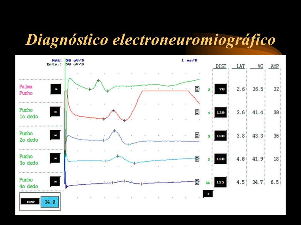 Diagnóstico electroneuromiográfico