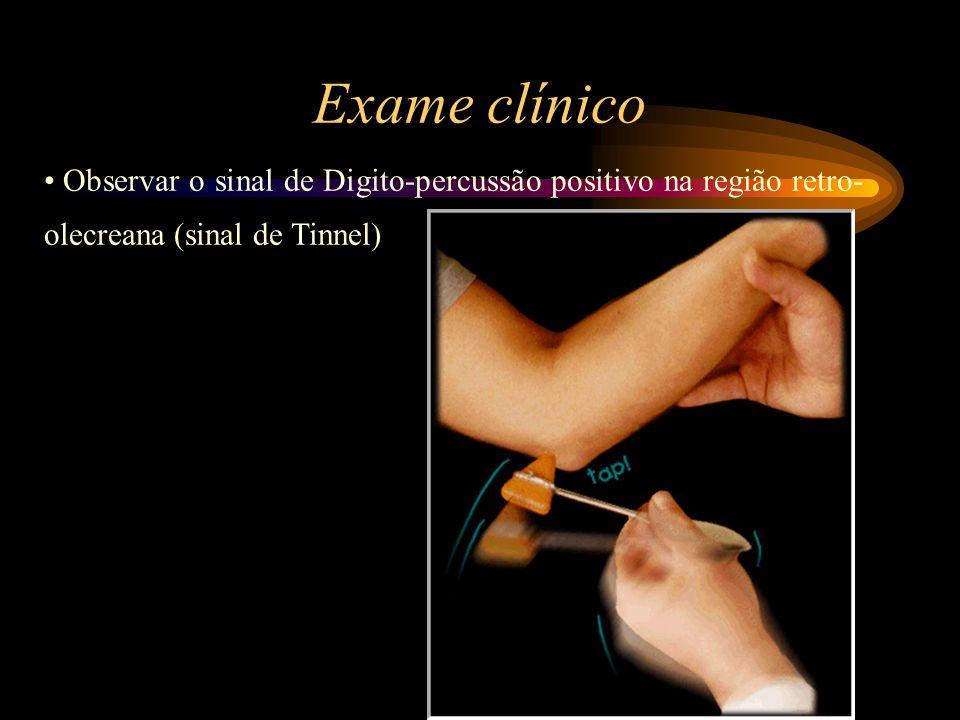 Exame clínico Observar o sinal de Digito-percussão positivo na região retro-olecreana (sinal de Tinnel)