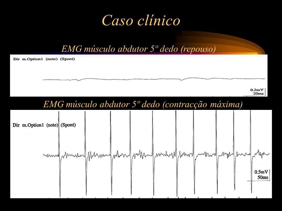 Caso clínico EMG músculo abdutor 5º dedo (repouso)