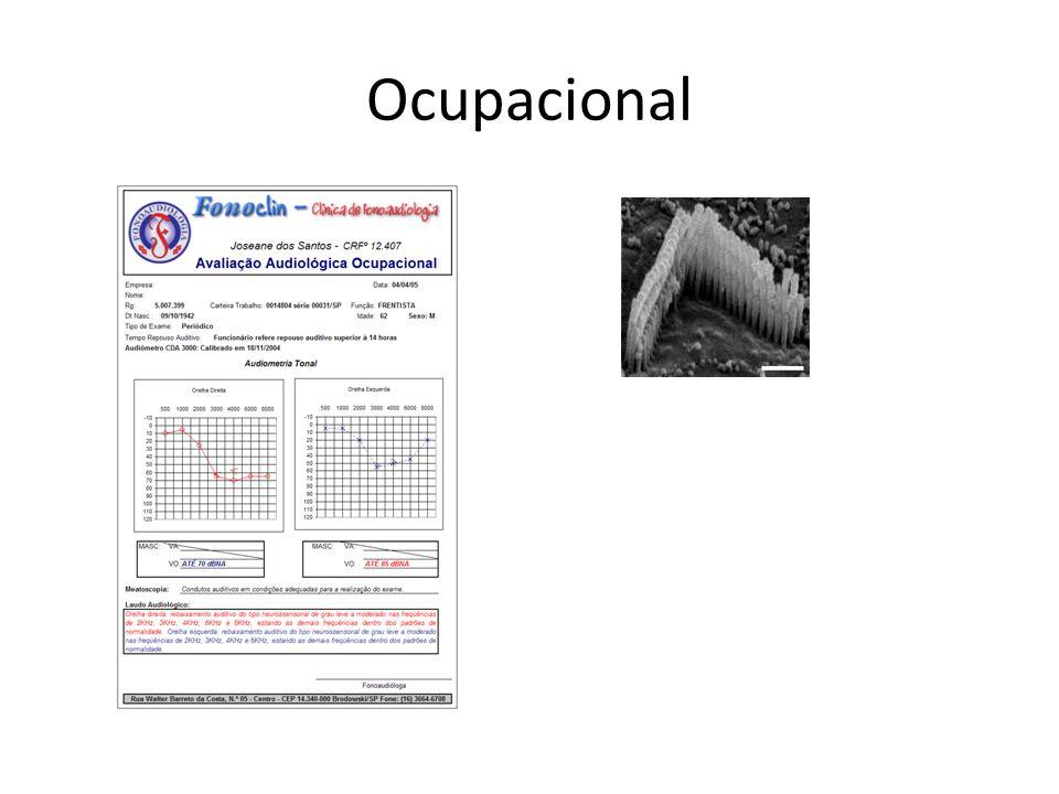 Ocupacional