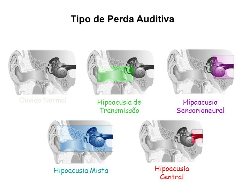 Tipo de Perda Auditiva Ouvido Normal Hipoacusia de Transmissão