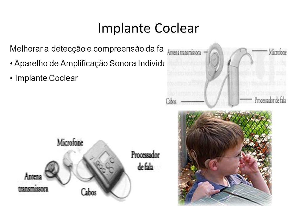 Implante Coclear Melhorar a detecção e compreensão da fala