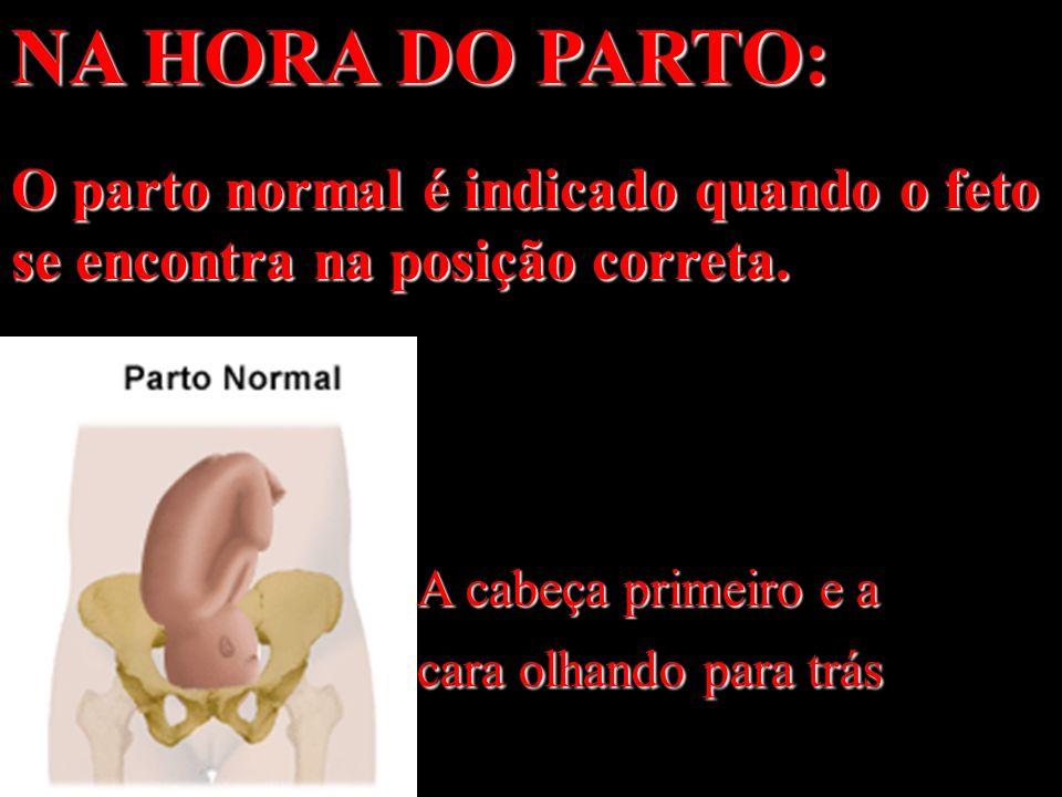 NA HORA DO PARTO: O parto normal é indicado quando o feto se encontra na posição correta.