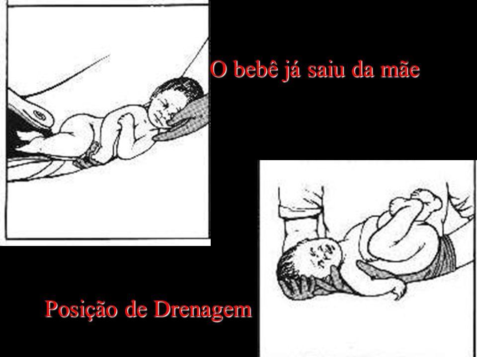O bebê já saiu da mãe Posição de Drenagem