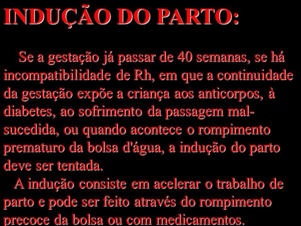 INDUÇÃO DO PARTO: