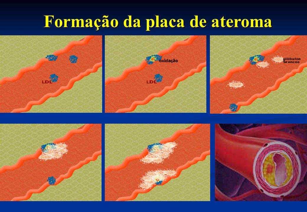 Formação da placa de ateroma