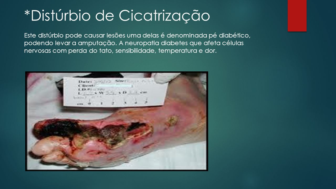 *Distúrbio de Cicatrização